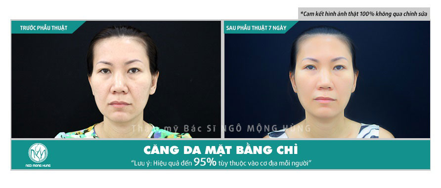 Căng da mặt bằng laser