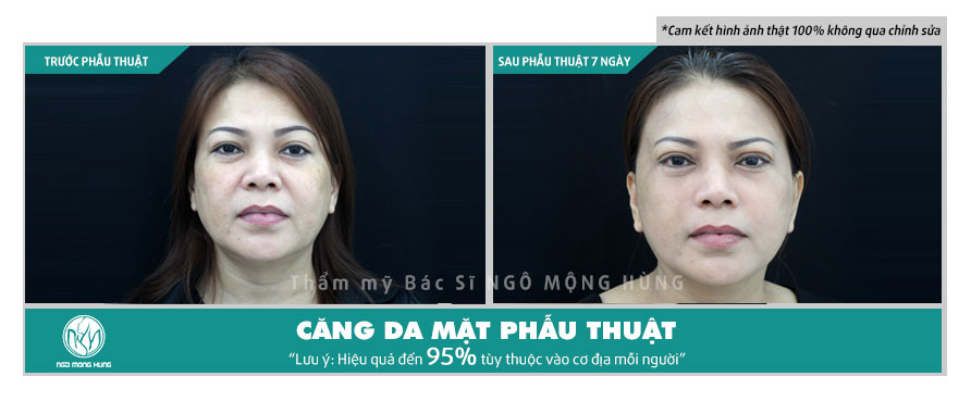 Giá phẫu thuật căng da mặt