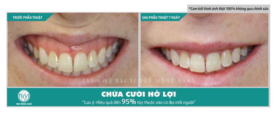Chữa cười hở lợi không phẫu thuật