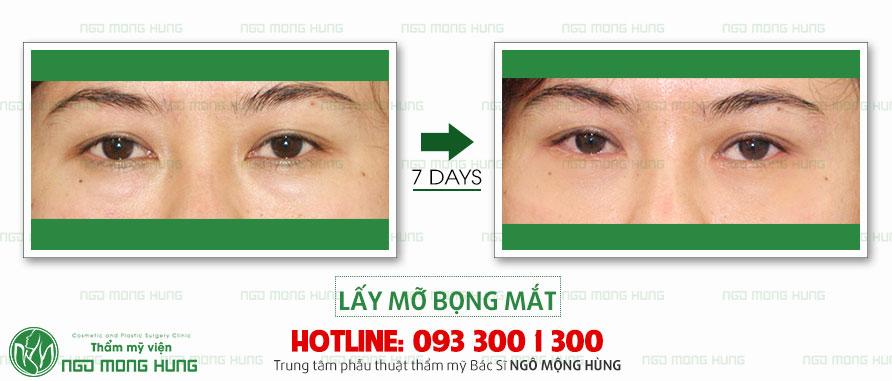 Cách làm giảm bọng mỡ mắt