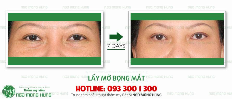 Giá cắt mỡ mí mắt