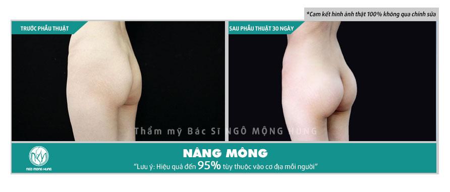 Quần nâng mông gen bụng
