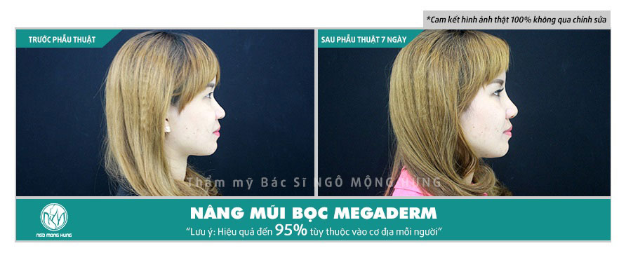 Nâng mũi không phẫu thuật vĩnh viễn