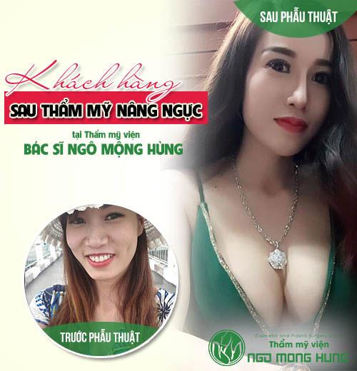 Phẫu thuật cắt bỏ ngực tại Việt Nam