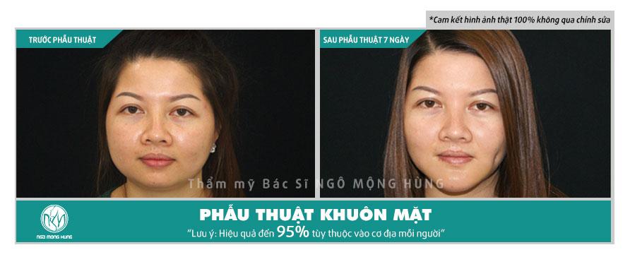 Tạo khuôn mặt v line không phẫu thuật