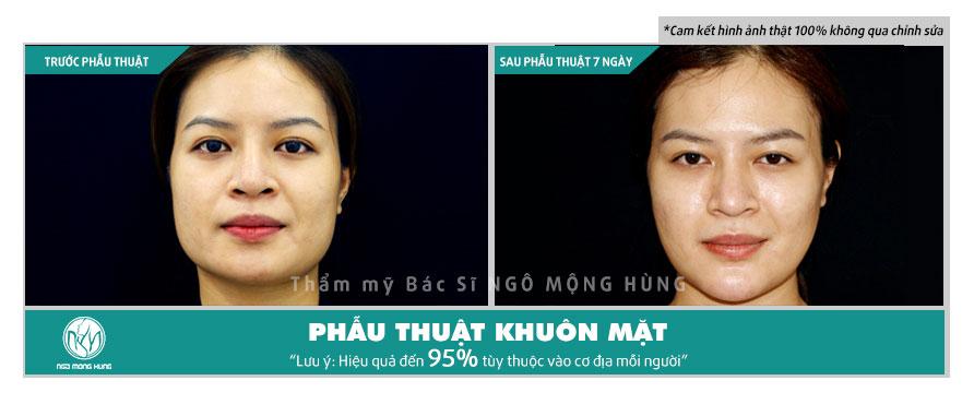 Phẫu thuật thay đổi toàn bộ khuôn mặt