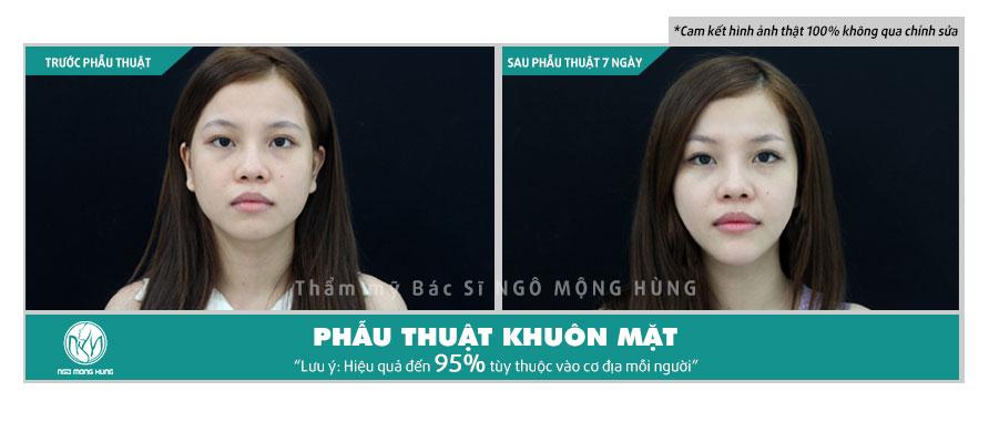 Phẫu thuật thẩm mỹ khuôn mặt biến dạng