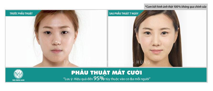 Phẫu thuật mắt cười Hàn Quốc