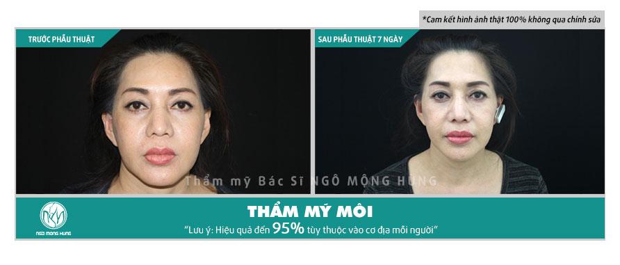 Phẫu thuật môi bao lâu thì lành