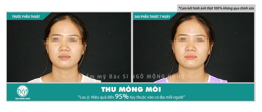 Phẫu thuật sửa môi dày