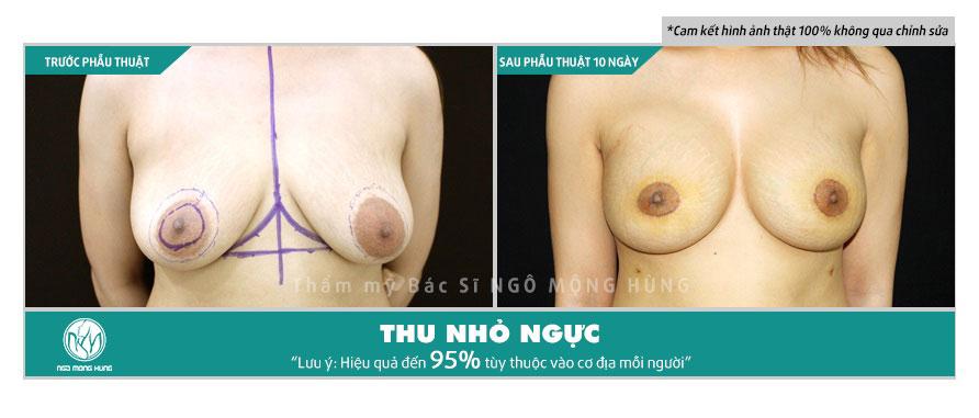 Thuốc nở ngực có an toàn không