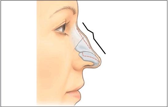 Nâng mũi an toàn nhất