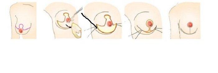 Chia sẻ những cách giảm ngực chảy xệ  hiện nay 2d-nang-nguc-chay-xe-4