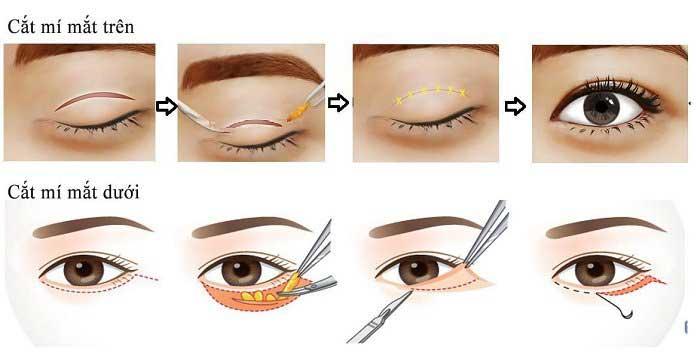 Phẫu thuật mí mắt nam giới