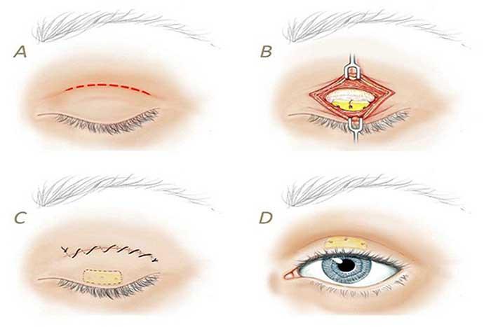 Đông y chữa bệnh sụp mí mắt