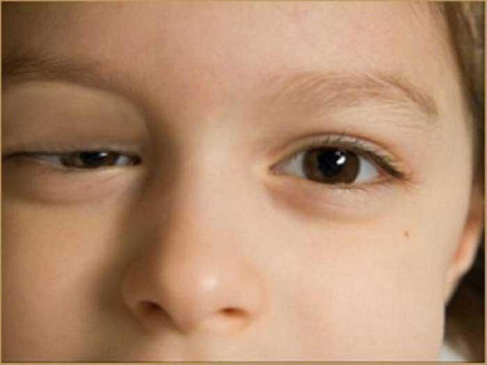 Sụp mí mắt có di truyền không