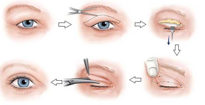 Kem chống sụp mí mắt