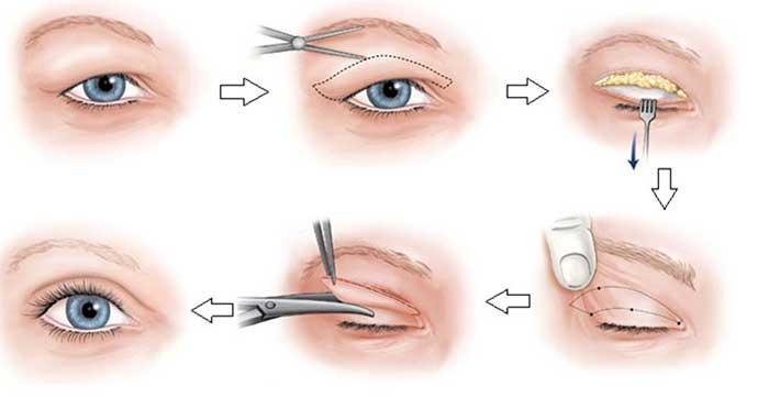 Cách điều trị sụp mí mắt
