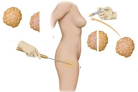Chi phí nâng ngực không phẫu thuật