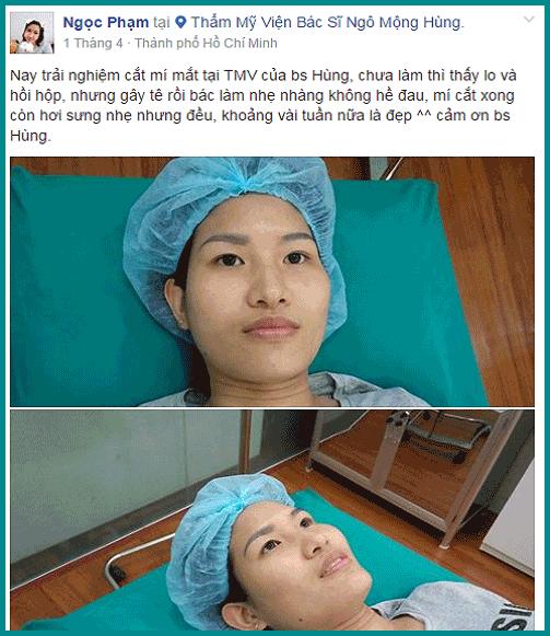 Phẫu thuật thẩm mỹ mắt webtretho