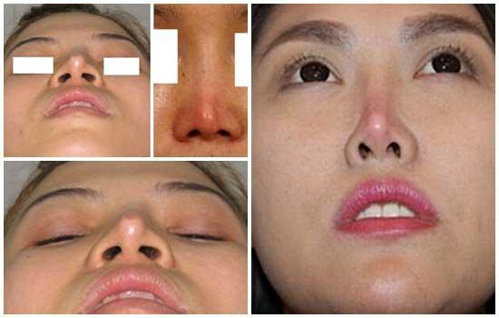 Nâng mũi có tác hại gì không