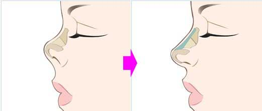 Chỉnh nâng mũi hếch