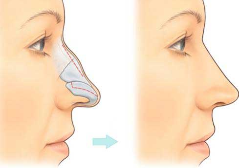 Sửa sống mũi gồ