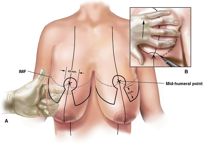 Ngăn ngừa ngực chảy xệ