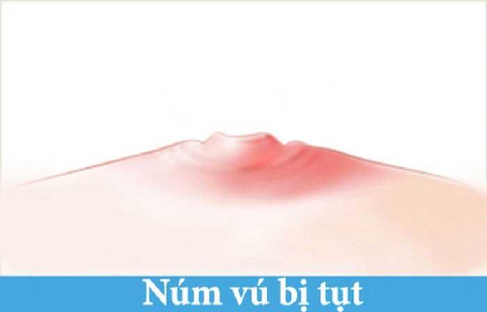 Tụt núm vú và cách chữa trị