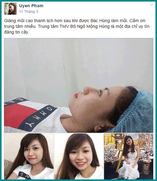 Hình ảnh phẫu thuật nâng mũi