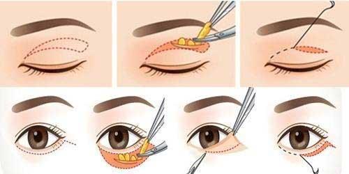 Bí quyết chữa sụp mí mắt