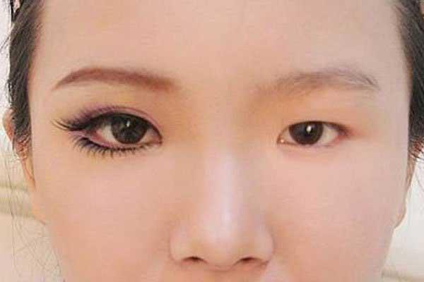 Phẫu thuật hai mắt không đều nhau
