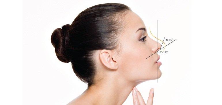 Nâng mũi bằng sụn vách ngăn