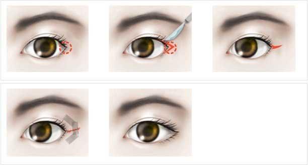 Đôi mắt xếch là như thế nào