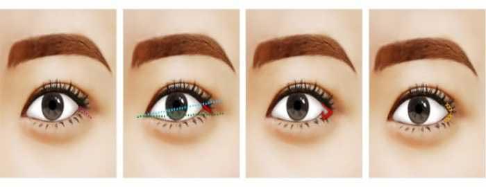 Mắt xếch là gì