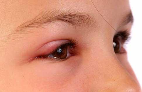Sụp mí mắt trái
