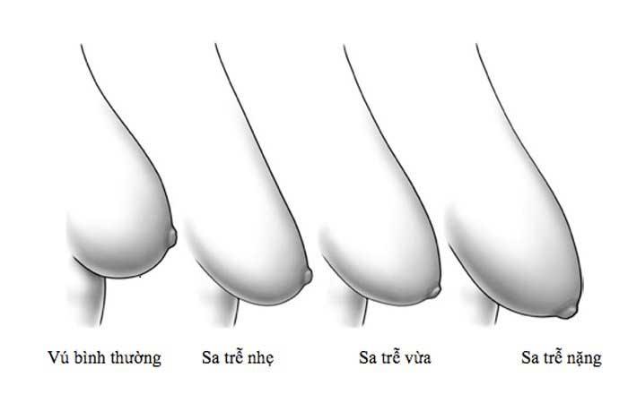 Làm sao biết ngực bị xệ