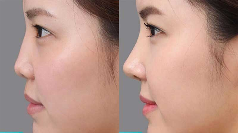 Mũi tẹt thành mũi cao không cần phẫu thuật
