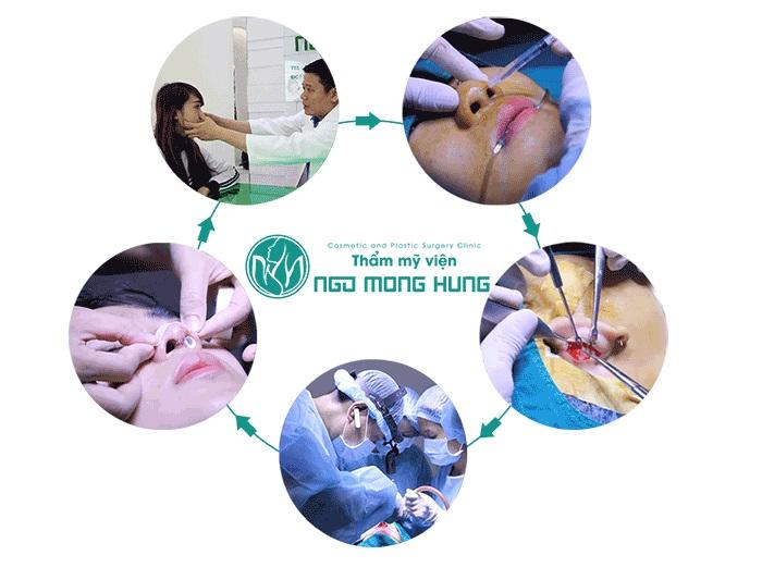 Phẫu thuật mũi S line Hà Nội