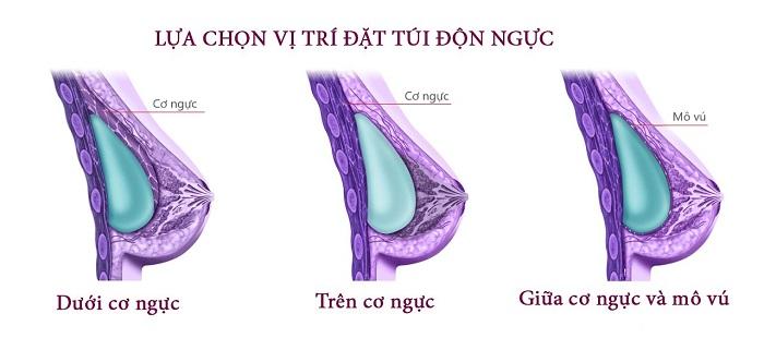 Nâng ngực có ảnh hưởng đến việc cho con bú