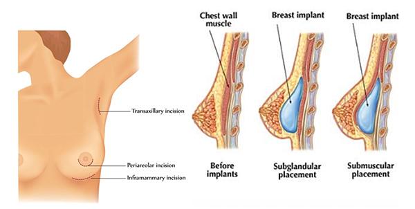 Nâng ngực nội soi bao lâu thì hết đau