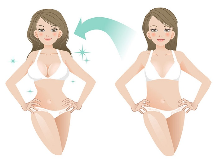 Nâng ngực nội soi có tốt không
