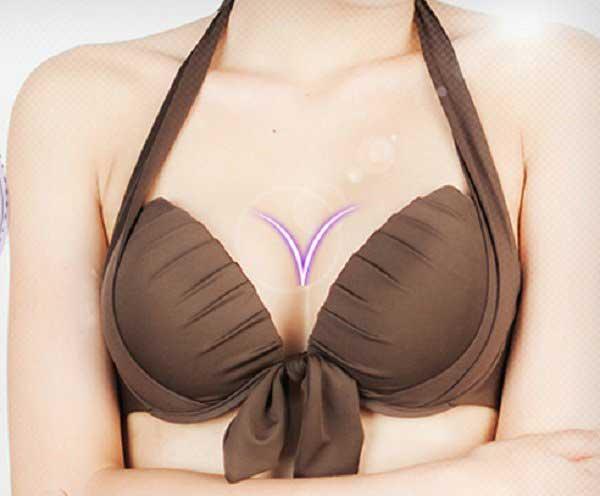 Nâng ngực Y Line là gì