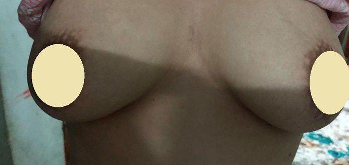 Ngực chảy xệ sau sinh