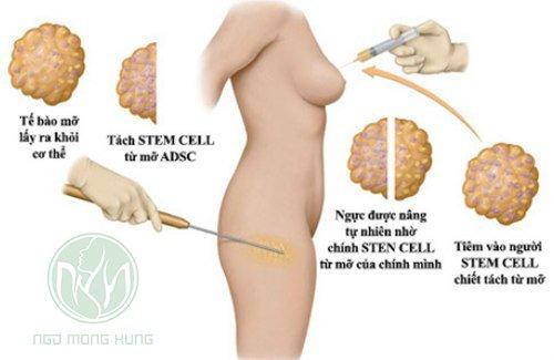 Phẫu thuật nâng ngực và làm eo thon