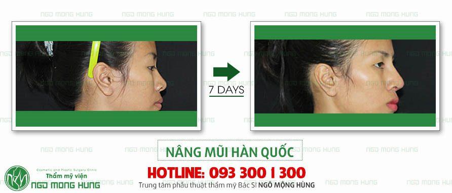 Nên nâng mũi ở đâu tại Hà Nội