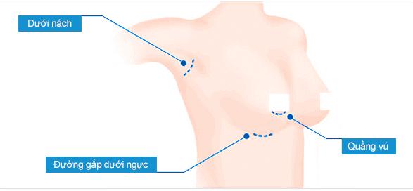 Tư vấn nâng ngực nội soi đường nách