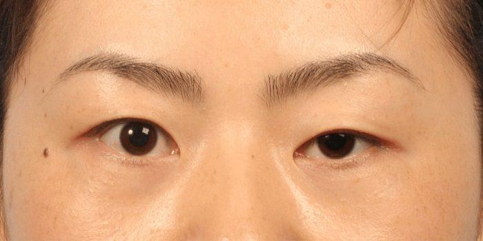 Triệu chứng sụp mí mắt