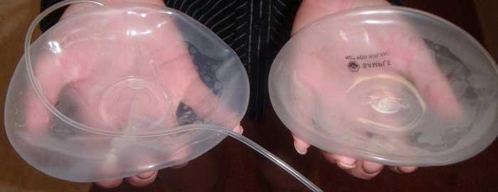 Nâng ngực bằng túi nước biển