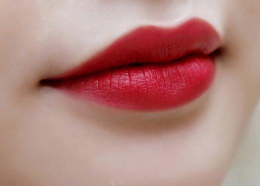 Thẩm mỹ làm hồng môi